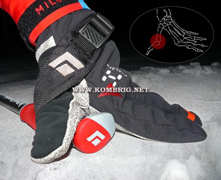 """Типичная травма горнолыжников, известная под названием """"большой палец лыжника"""" (англ. skier's thumb)"""